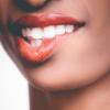 Fatetele dentare – 3 Lucuri interesante pe care ar trebui sa le stii