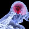 Accidentul vascular cerebral (AVC), ce este, cate tipuri sunt si ce trebuie sa faci?