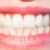Albire dinti acasa. Pasta pentru albire dinti