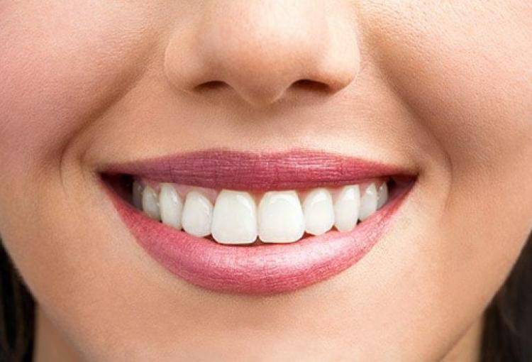adv-fatete-dentare.jpg